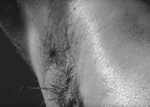 An intimate study on body hair