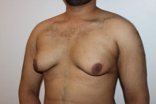 Everything to know about man boobs from a surgeon who gets rid of them
