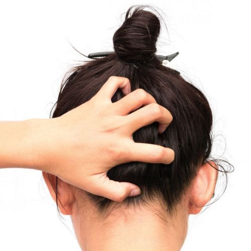 Tips for Identifying and Treating Common Scalp Issues